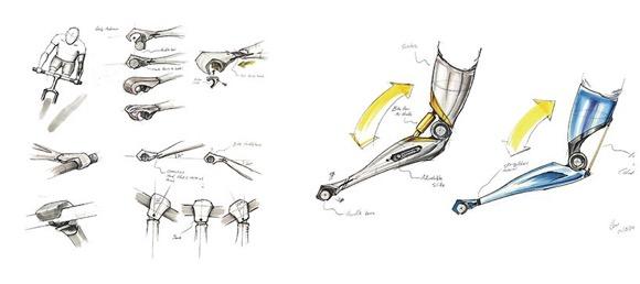 3D打印的假肢